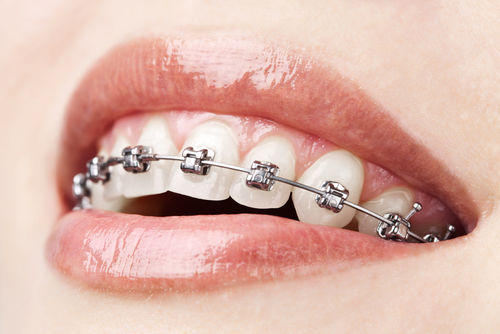 braces.jpg - large