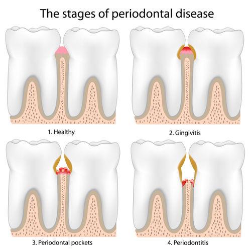 periodontitis.jpg - large