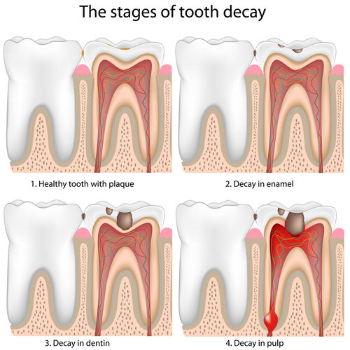toothdecay.jpg - large
